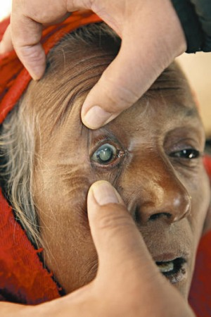 Open wide …  a woman with very visible cataracts is prepared for surgery at Manpur.