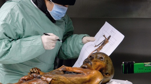 Ozti is one of the world's best-preserved mummies.